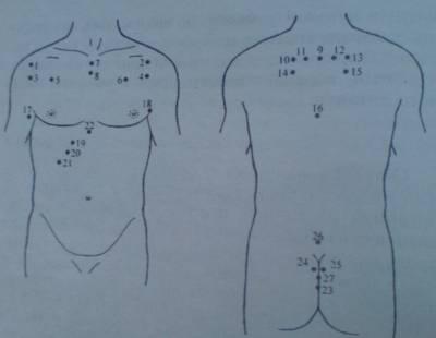 Схема постановки пиявок при лечении бронхита стандартная. (смотрите рисунок ниже).  Зоны постановки пиявок: - Зона...